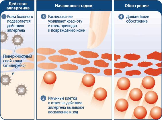 стадии дерматита