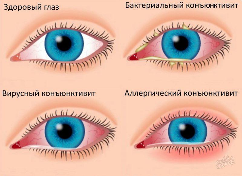 виды аллергии в области глаз