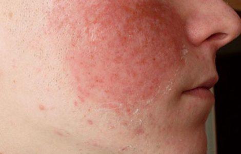 Красные пятна на щеках: причины возникновения и методы лечения