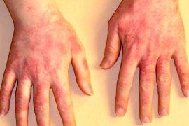 Появление атопического дерматита на руках