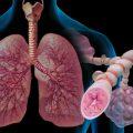 Бронхиальная астма: стадии развития, код по МКБ 10