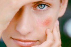 Почему на лице появляются красные пятна и чешутся