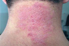 Нейродермит: симптомы и лечение у взрослых